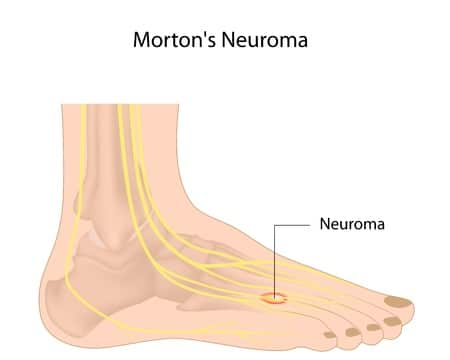 numb feet